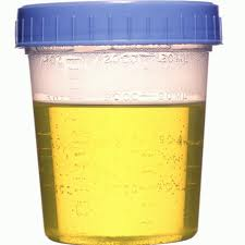 Mengenal Penyakit Melalui Warna Urin
