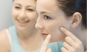 Tips Untuk Menghilangkan Jerawat