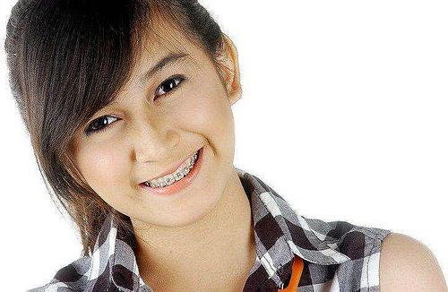 Behel / Kawat Gigi Fashion Di Kalangan Remaja
