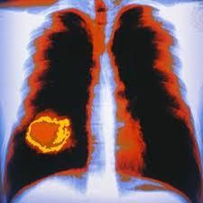 Penderita Penyakit Kanker Meningkat 75 Persen
