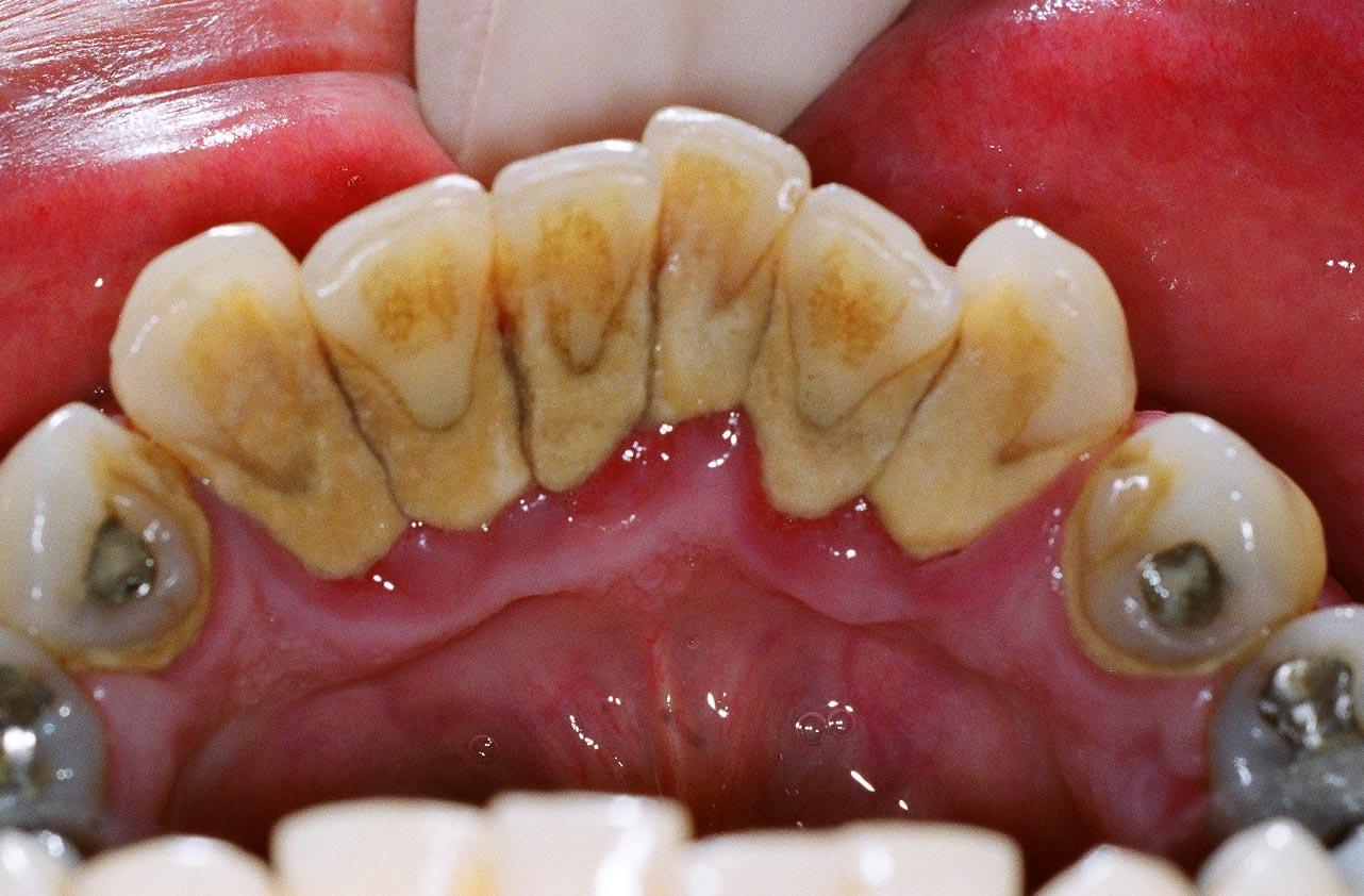 Tips Cara Membersihkan Karang Gigi Dalam Mulut