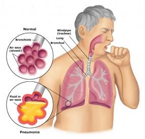 Info Penyakit Atelektasis
