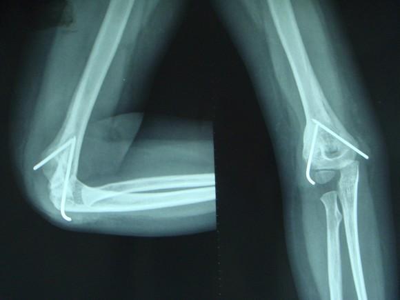 Osteomalasia Mengacu Pada Pelunakan Tulang