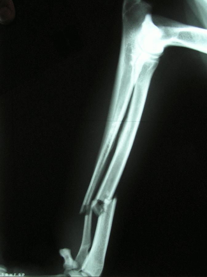 sinar X Pelunakan Tulang