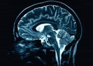 Parkinson Merupakan Penyakit Menyerang Otak Manusia