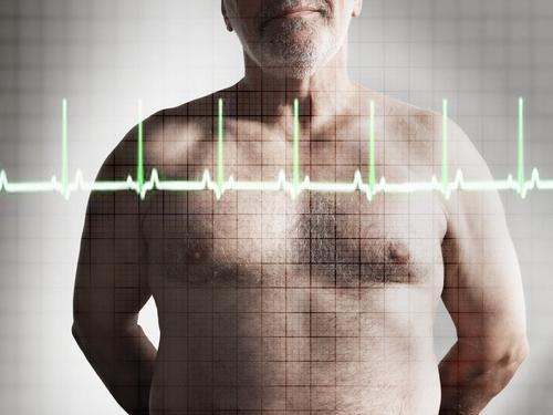 Penyakit Aritmia Jantung