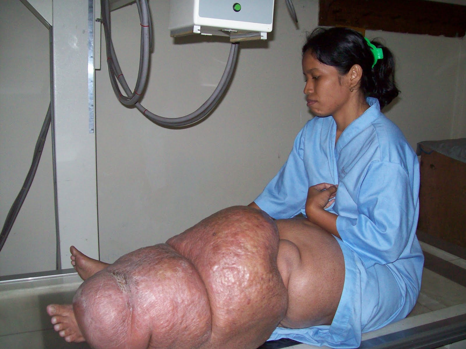 Penyakit Kaki Gajah Disebabkan Cacing Filaria