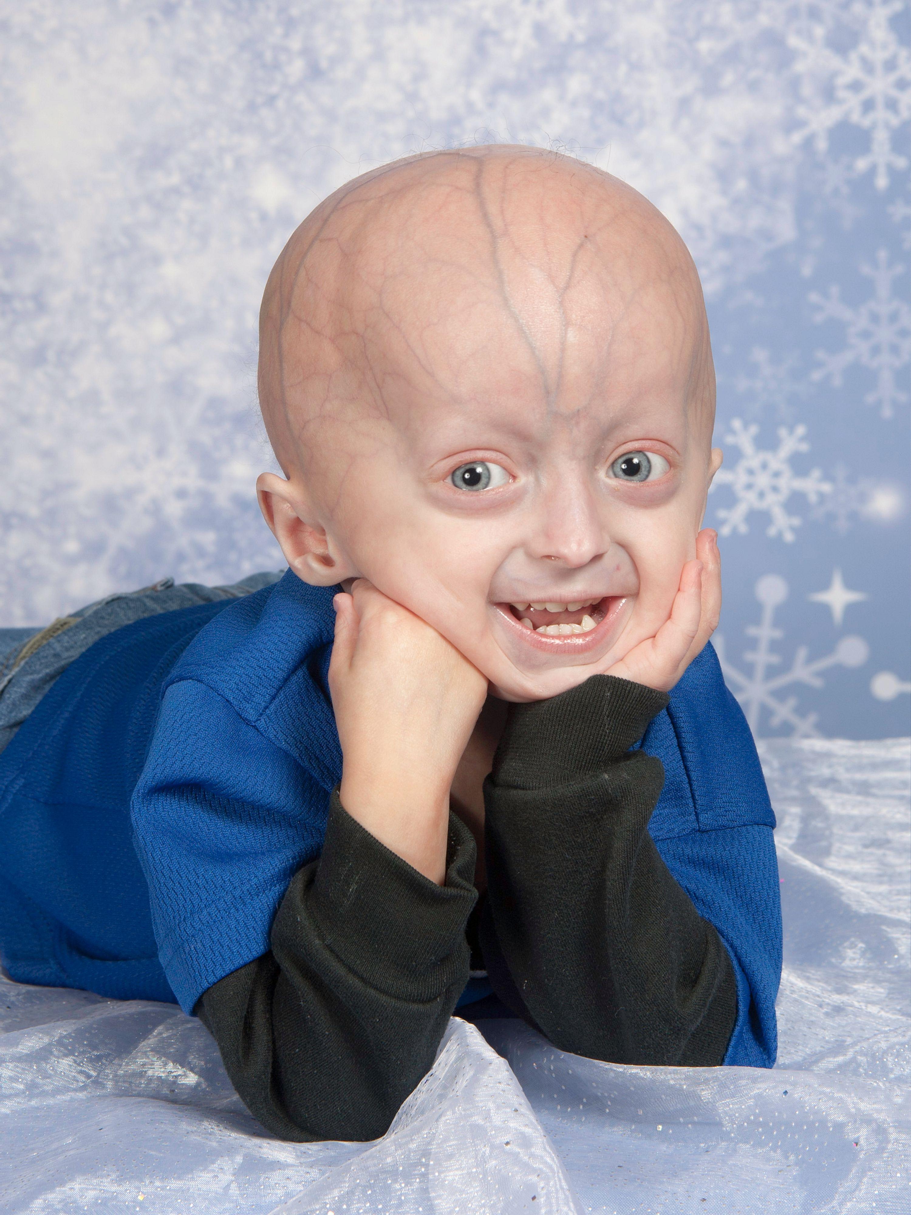 Penyakit Progeria Adalah Penyakit Langka Di Dunia