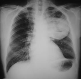 Rhumatoid Arthritis Dapat Mempengaruhi Paru-Paru