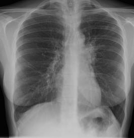 Penyakit Tuberkulosis (TBC) Menyerang Siapa Saja