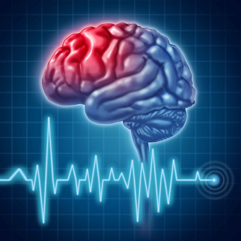 Stroke Karena Berkurangnya Aliran Darah Dan Oksigen Ke Otak