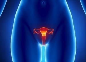 5 Hal Mengenai Kanker Mulut Rahim
