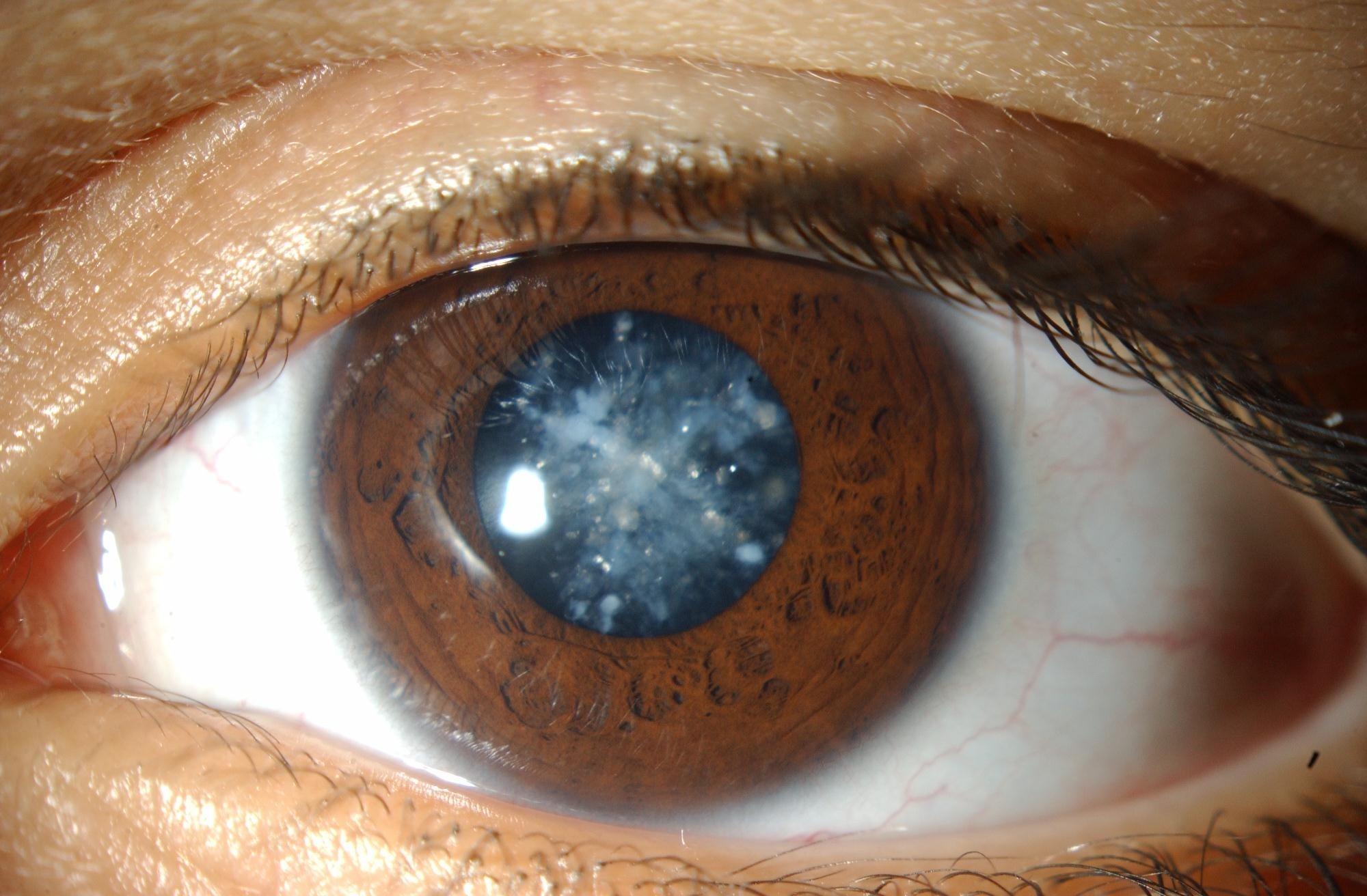 Lensa Mata Rusak Minimbulkan Penyakit Katarak Mata