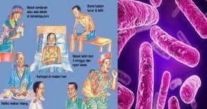 Penyakit TBC Harus Memerlukan Penanganan Khusus