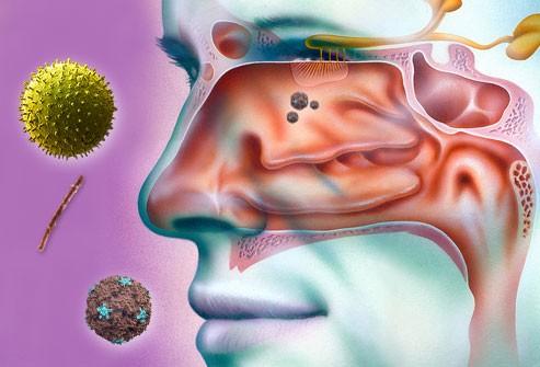 Penyebab Penyakit Sinusitis