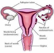 Sterilisasi Permanen Dengan Pembedahan Mengikat Tuba Falopi