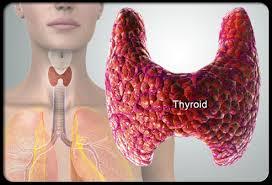 Penyebab Dan Cara Mengatasi Penyakit Hipertiroid