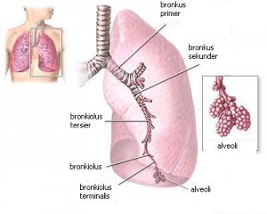 Penyebab, Gejala Dan Pengobatan Penyakit Bronkiektasis
