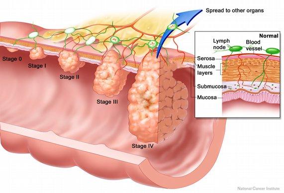 Gejala Penyakit Tumor Usus Halus