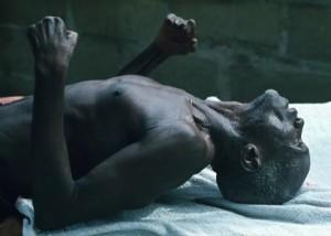 Kebanyakan Orang Di Dunia mati Akibat Tetanus