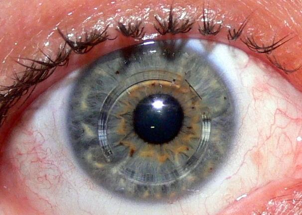 Memakai Lensa Kontak Mengundang Penyakit Keratoconus