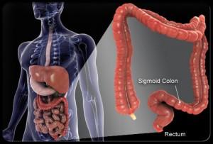 Penyakit Kanker Kolorektal