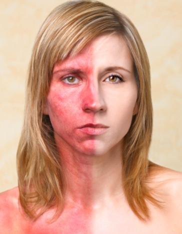 Wajah Gadis Asal Inggris Berubah karena Mengidap Penyakit Kanker Kulit