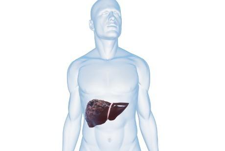 Penyakit Hepatitis B Mengakibatkan Kanker Hati