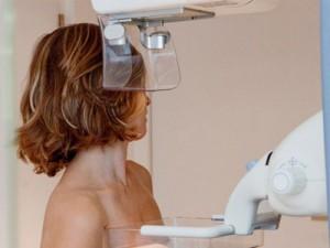 Teknik Terbaru Pengobatan Kanker Payudara