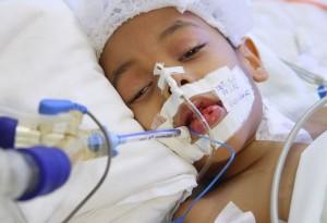Mengenal Ciri-Ciri Penyakit Leukimia Pada Anak