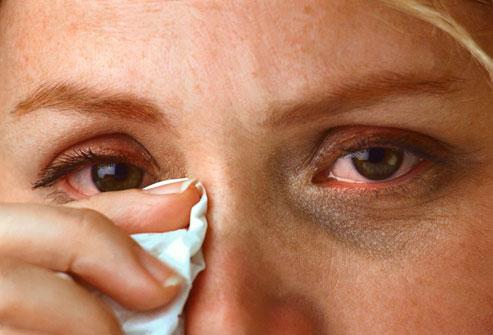 Penyebab Utama Iritasi dan Alergi Pada Mata