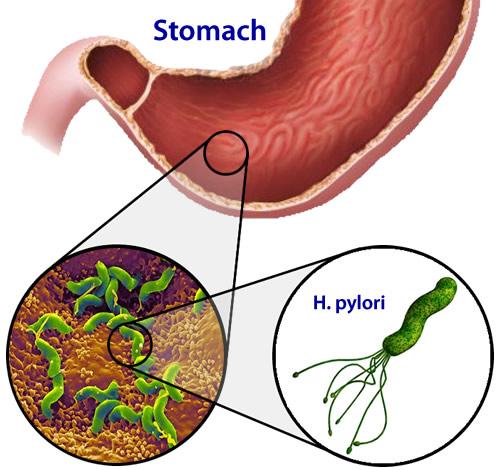 Infeksi Helicobacter Pylori Pada Lambung Manusia