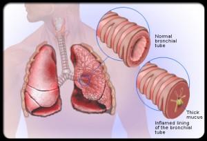Penyakit Bronkitis dan Penyakit Asma