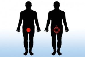 Penyakit Balanitis Pada Pria