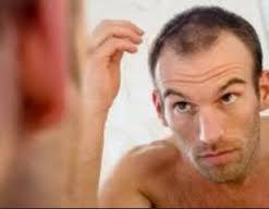 Tips Menangani Rambut Rontok dan Kebotakan