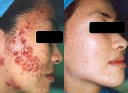 Metode Menghilangkan Bekas Luka Penyakit Herpes