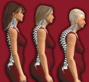 Informasi Penyakit Osteoporosis