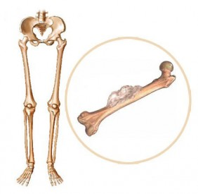 Informasi Seputar Penyakit Kanker Tulang