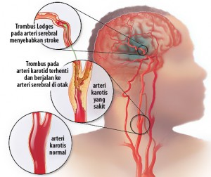 Penyebab dan Gejala Perdarahan Pada Otak