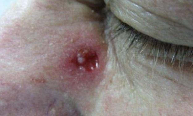 mengeringkan-luka-lecet-di-hidung-dan-menghilangkan-bekasnya